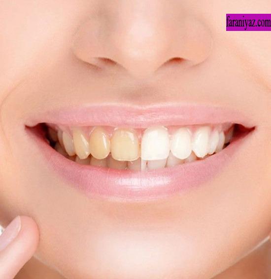 5 توصیه برای سفید کردن دندان در دو دقیقه روش سفید کردن دندان های جرم گرفته و زرد فرانیاز