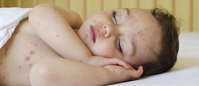 استرس و خارش پوست در کودکان
