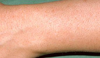اسکرابهای لایه بردار خانگی پوست مرغی