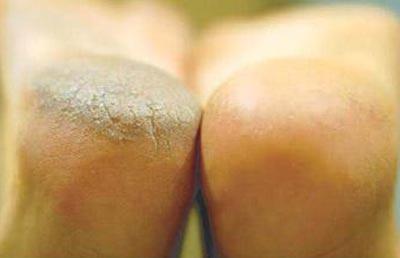 آشنایی با پینه پوست و روشهای درمان آن در پورتال جامع فرانیاز فراترازنیاز