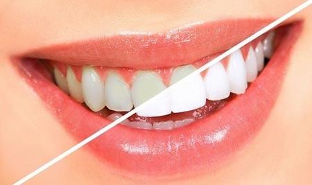 عکس روشهای طبیعی سفید کردن دندان ها