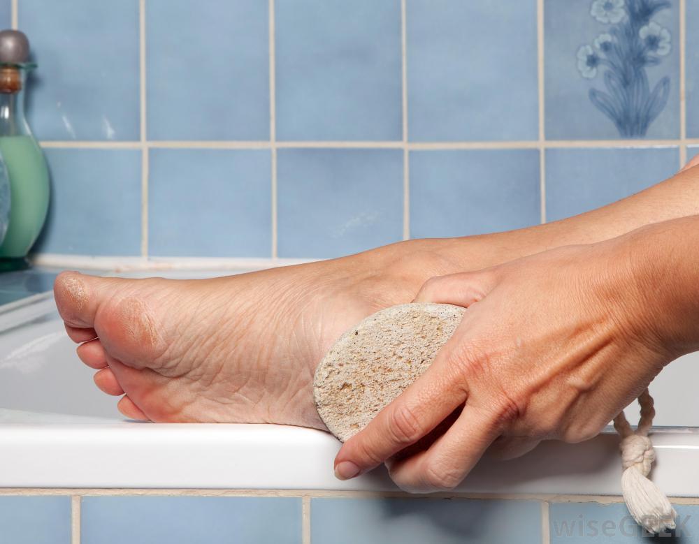 درمان پینه پوست با سنگ پا