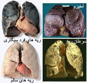 عکس مضرات سیگار