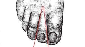 شخصیت شناسسی افراد از روی انگشت پا در پورتال جامع فرانیاز