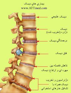 درمان دیسک کمر . عکس مهره کمر