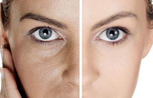 عکس علت باز شدن و راههای بستن منافض پوست