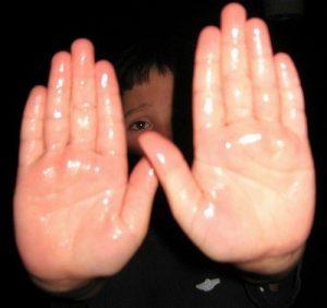 درمان عرق دست عکس کف دست