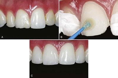 عکس راهی برای ترمیم مینای دندان
