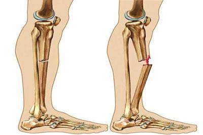 تغذیه مقوی جهت جوش خوردن استخوان پای شکسته