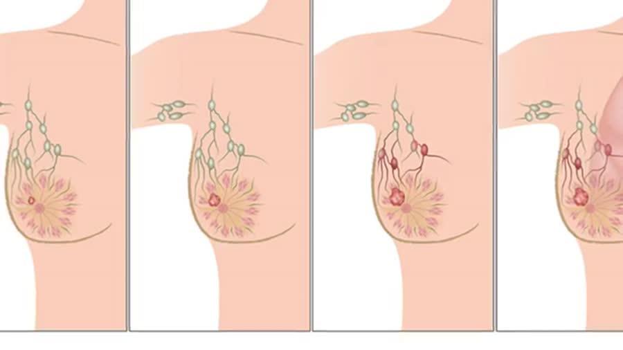 نشانه های سرطان سینه و راههای تشخیص ان
