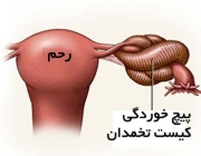 عکس پیچ خوردگی تخمدان چیست