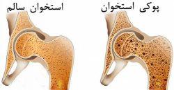 پوکی استخوان در بانوان
