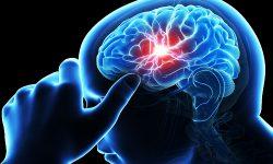 ۶ عامل سکته مغزی در بانوان در فرانیاز