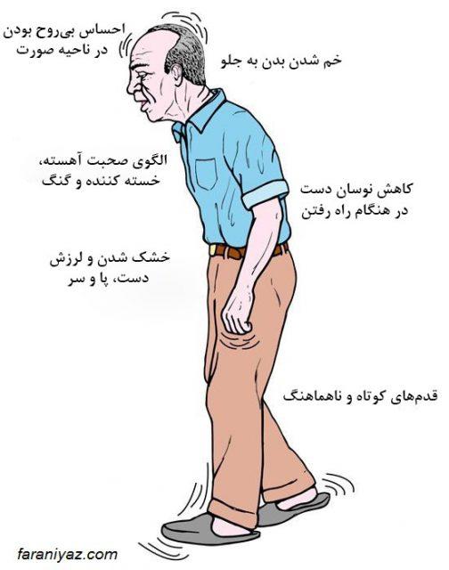 بیماری پارکینسون+معرفی