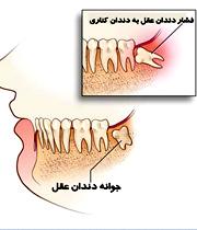 عکس نکاتی برای کشیدن دندان عقل