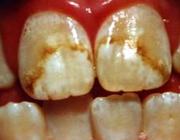 مصرف زیاد فلوراید باعث بدرنگی و لکه دندان میشود در پورتال جامع فرانیاز فراتر از نیاز