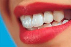 بعد از ترمیم (پرکردن) دندان چه مراقبتهایی باید انجام دهیم در پورتال جامع فرانیاز فراتر از نیاز