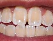 علت بدرنگ شدن دندانها در پورتال جامع فرانیاز فراتر از نیاز هر ایرانی