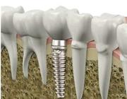 عکس ایمپلنت برای جایگزینی دندان از دست رفته