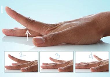 تپل شدن انگشتان دست