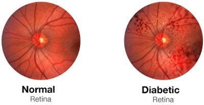روشهای طبیعی برای پیشگیری از نابینایی دیابتی در پورتال جامع فرانیاز فراترازنیاز هر ایرانی.