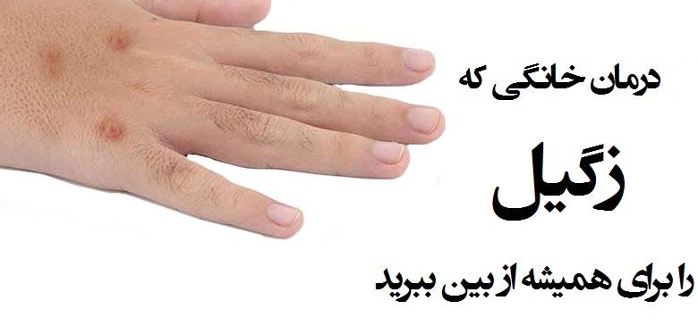 درمانهای خانگی زگیل در پورتال جامع فرانیاز فراتراز نیاز هر ایرانی .