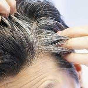 عکس علت سفید شدن مو در جوانی