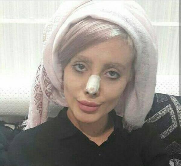 سحر تبر (عروس مرده انجلینا جولی ) قبل و بعد از عمل در پورتال جامع فرانیاز فراتراز نیاز هر ایرانی