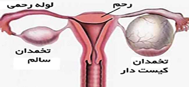 درمان حاملگی خارج از رحم با طب سنتی در پورتال جامع فرانیاز فراتراز نیاز هر ایرانی .