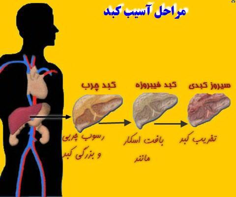 کبد چرب درمان گیاهی در پورتال جامع فرانیاز فراتراز نیاز هر ایرانی .