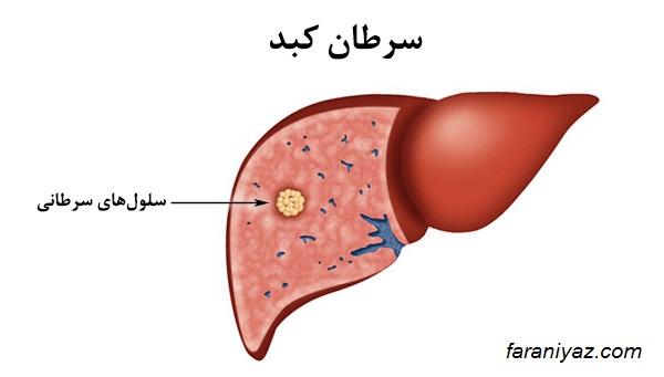 علایم و نشانههای سرطان کبد