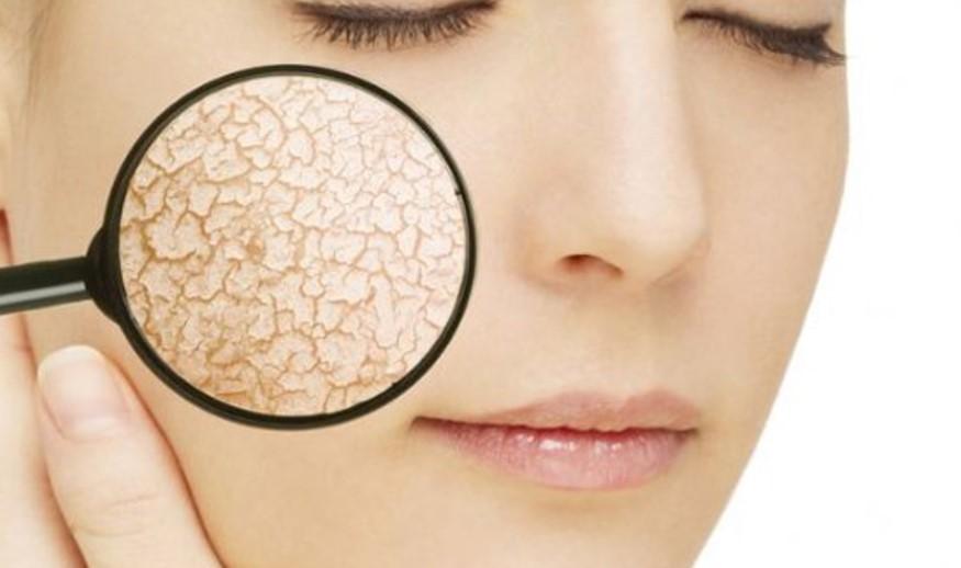 راههای مراقبت از انواع پوست ها