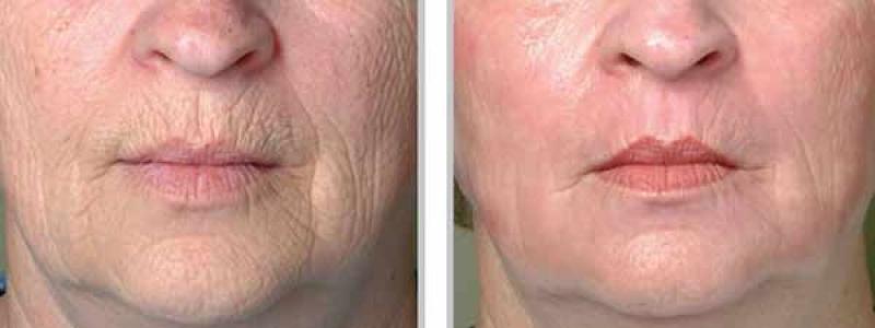 عکس آشنایی با روشهای از بین بردن چروک دور لب با آرایش