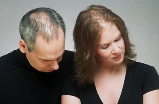 عکس آشنایی با عوامل و دلایل اصلی ریزش مو